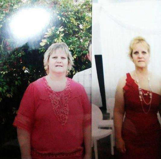 Claudia Berg dramatica perdida de peso medicina integral natural facundo bitsch